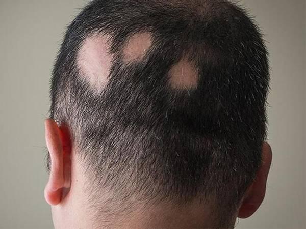 Alopecia_areata_Farmacia I+